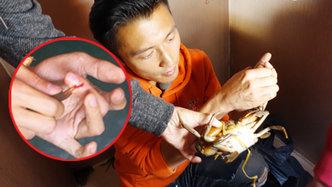 第8期:谢霆锋手指被蟹钳刺穿流血受伤