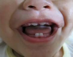 孩子门牙缝宽怎么办,来充电吧