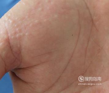 宝宝手指上起小水泡怎么办 看完就明白了
