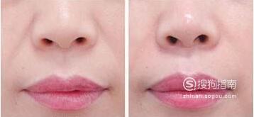 做胶原蛋白填充鼻唇沟