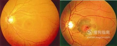 眼睛白眼球有黄斑怎么办,如何预防眼睛黄斑病变 你需要学习了