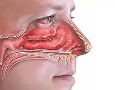 盐水洗鼻的正确方法 看完就明白