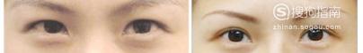 亲身经历割双眼皮手术的恢复过程
