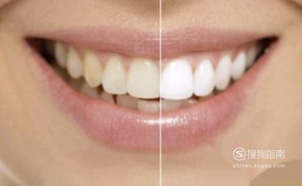 怎样判断自己是否是龅牙,经验告诉你该这样