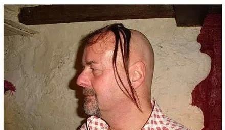 为什么长期熬夜会造成头发油腻、严重掉头发呢? 看完你就知道了