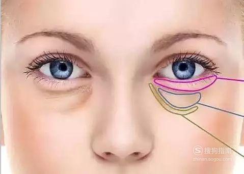 做去眼袋失败修复风险是什么?,具体内容