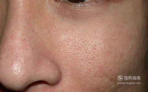 毛孔粗大粉刺黑头的原因,看完就明白了