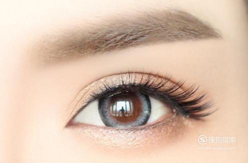 韩式三点双眼皮手术后