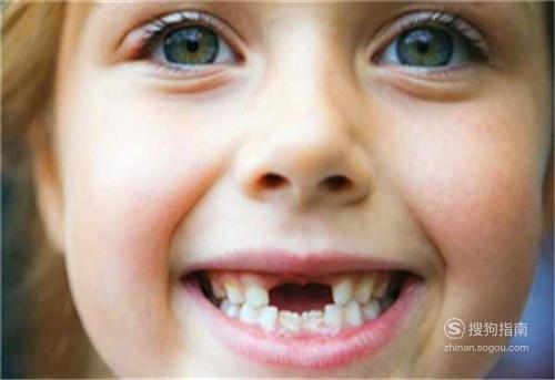 宝宝换牙期间应该注意什么问题?,需要技巧