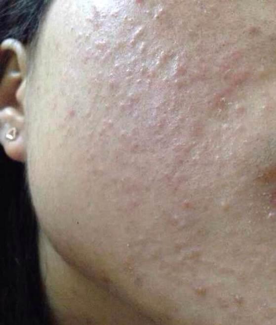 痘痘、斑点、黑头、粉刺形成的原因,划重点了