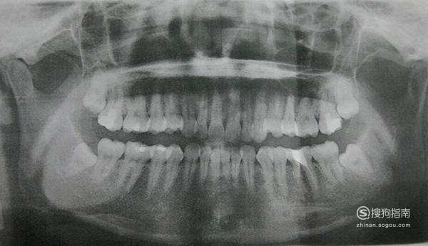 牙齿矫正:带牙套多少钱?我的整牙价格,这些经验不可多得