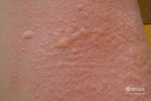 4类荨麻疹的早期症状