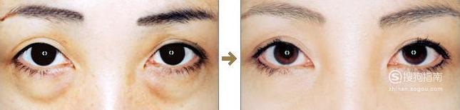 做射频消融去眼袋手术麻醉方式是什么? 需要技巧